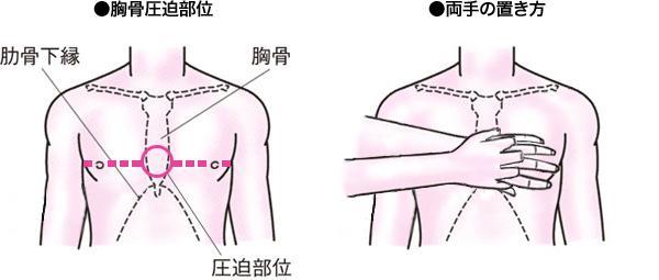 胸骨圧迫は強く・早く・絶え間なく行う